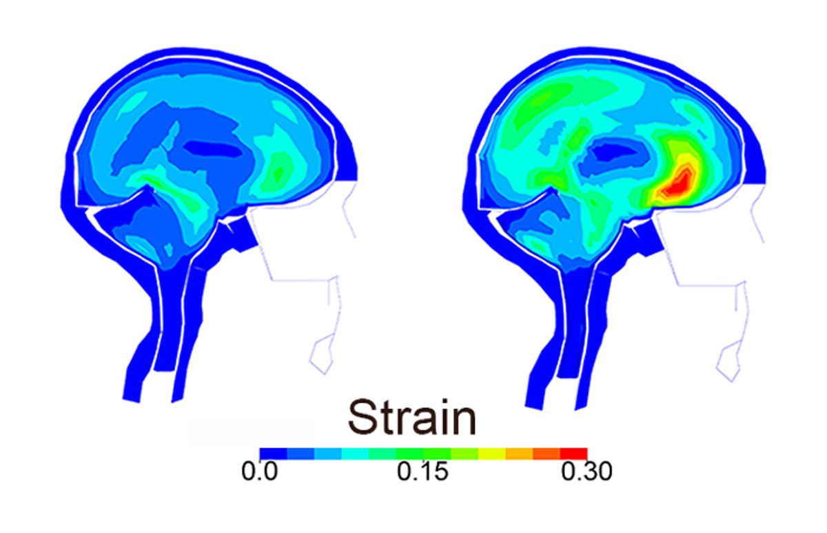 simulation head impact