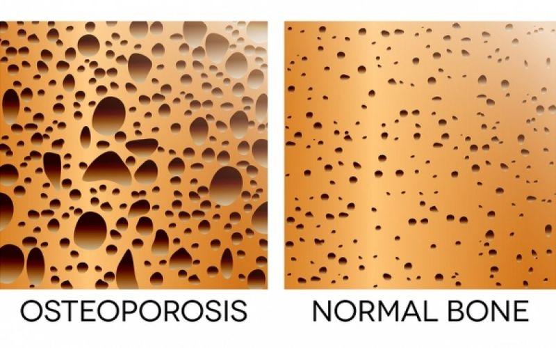 osteoporwsh