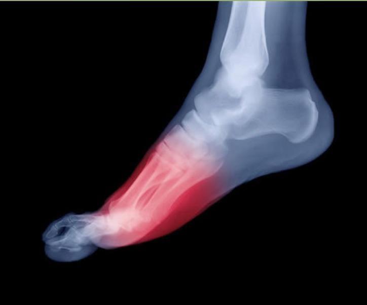 feet-pain