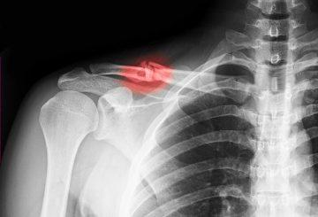 broken collarbone (1)